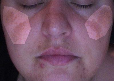 Melasma, Chloasma Pictures Dark Skin Pigmentation on Face